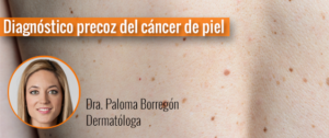 Diagnóstico precoz del cáncer de piel