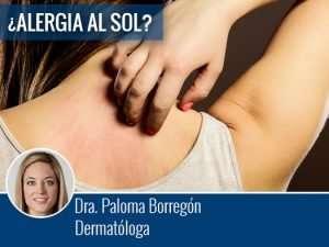 ¿Alergia al sol? por la Dra. Paloma Borregón