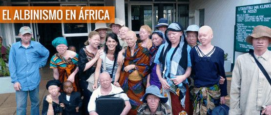 El albinismo en África, por la Dra. Lorea Bagazgoitia