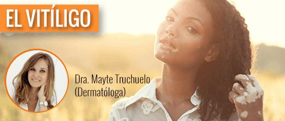 El vitíligo, por Mayte Truchuelo