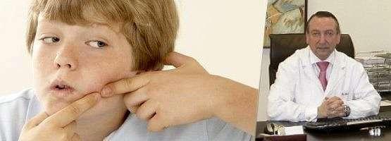 Dr. Padró nos habla de acné
