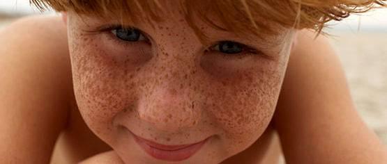Pecas en niños: que son, causas, como tratarlas y prevenirlas, por la Dra. Paloma Borregón