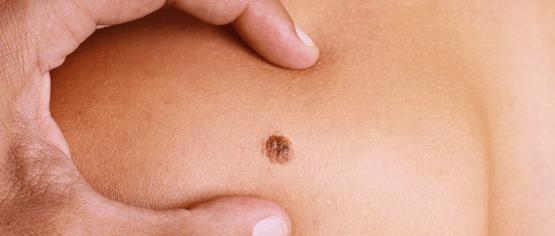 Factores de riesgo que predisponen a un cáncer de piel