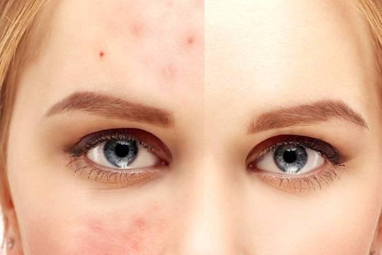 Protección solar para piel grasa