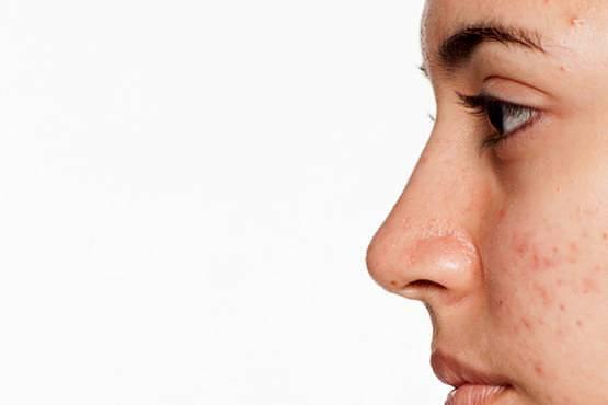 Heliocare 360º Color Gel Oil free, el protector solar ideal para las pieles con acné