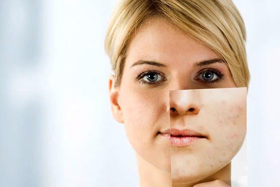 Fotomaquillaje para disimular las marcas del acné
