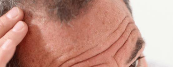 Novedades en el tratamiento de las alopecias