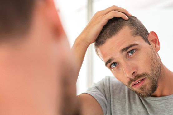 Hombre con soriasis del cuero cabelludo